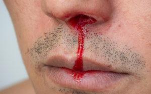bloody_nose
